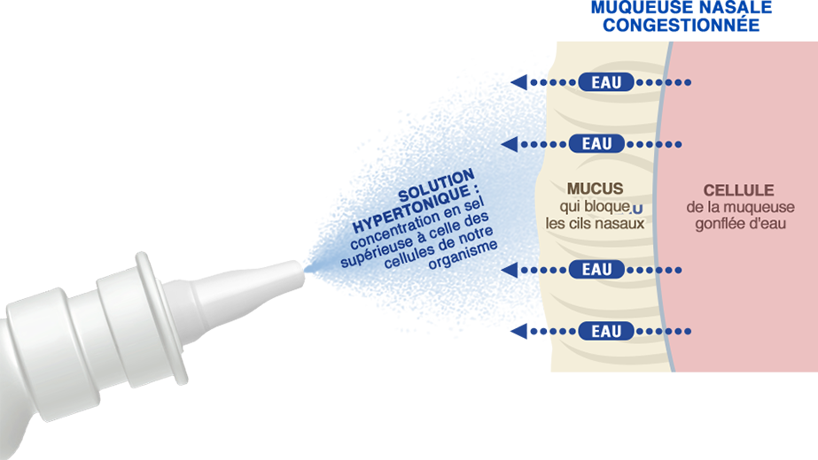 schéma muqueuse nasale congestionnée. La solution hypertonique stérimar a une concentration en sel supérieure à celle des cellules de notre organisme